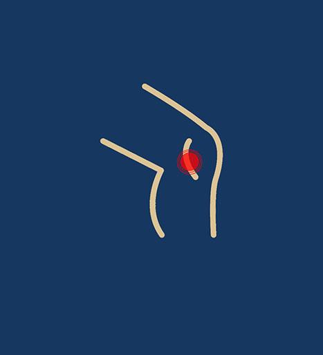 behandling-lober-knae-ikon-kaiser-sport_2