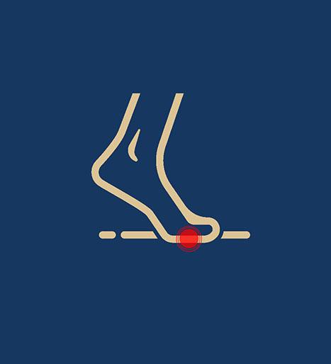 behandling-nedsunken-forfod-ikon-kaiser-sport_3